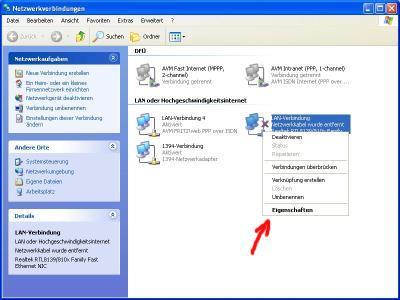 Netzwerk einrichten unter Windows XP