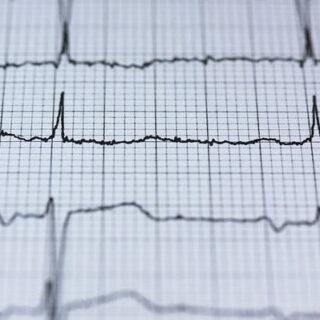 Herzfrequenzmesser - Sinnvolles Gadget oder nicht?