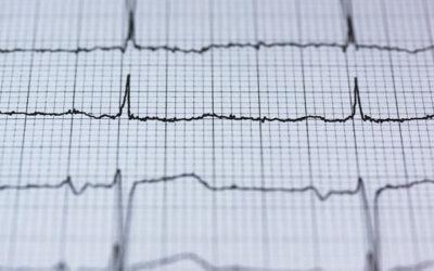 Herzfrequenz EKG