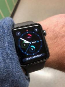Apple Watch am Handgelenk